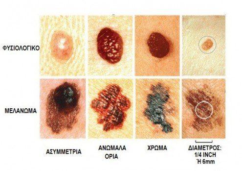 melanoma-495x349