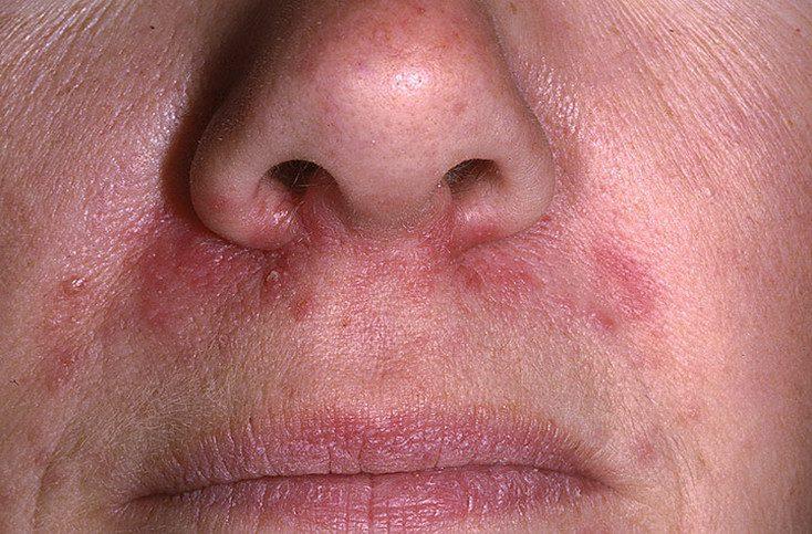 perioralnii-dermatit_135-a-foto