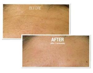 Fine Lines  Wrinkles Results